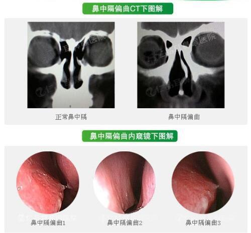 鼻中隔偏曲需要做手术吗?